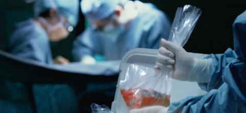 Una enfermera trasladando unos órganos en una bolsa en un quirófano