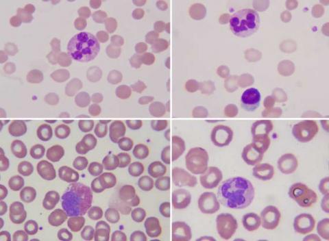 Leucemia Linfocítica Crónica (LLC)